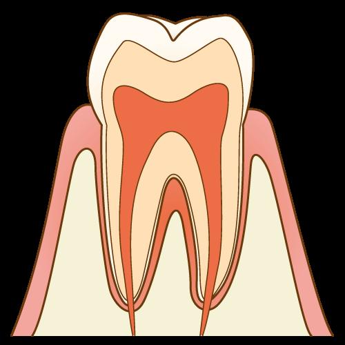 むし歯の進行度 C0