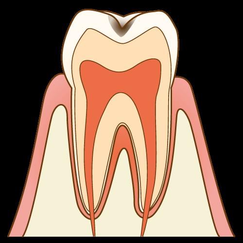 むし歯の進行度 C1