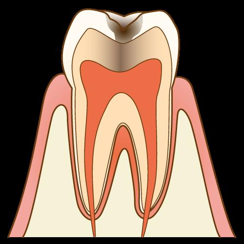 むし歯の進行度 C2