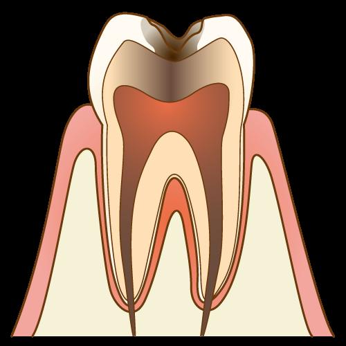 むし歯の進行度 C3