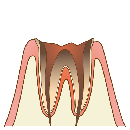 むし歯の進行度 C4