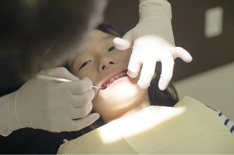 フッ素の塗布 小児歯科